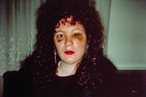 nan-goldin-nan-one-month-after-being-battered